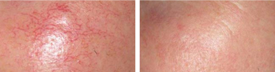 Laser Broken Capillaries Removal Image Two
