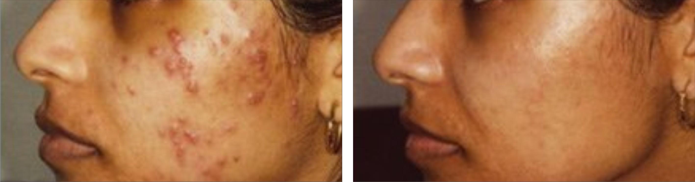 Acne Image Five