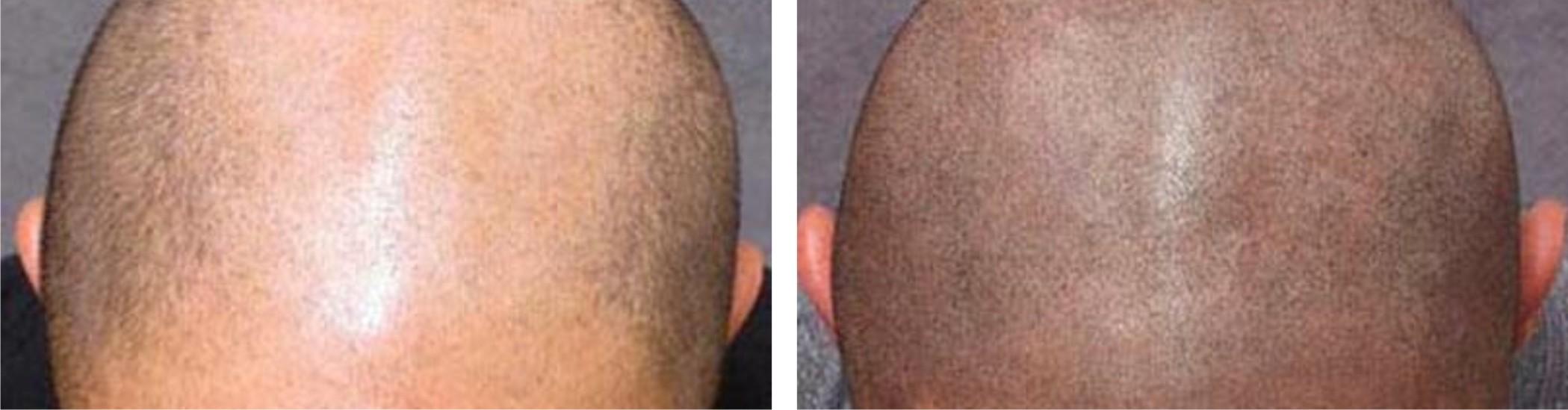 Hair Follicle Simulation Image Four
