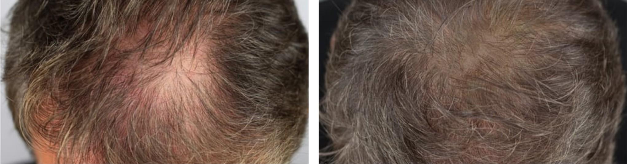 Hair Follicle Simulation Image Two
