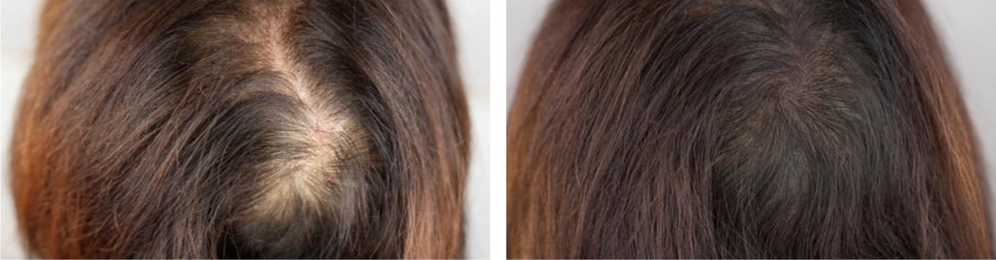 Hair Follicle Simulation Image One